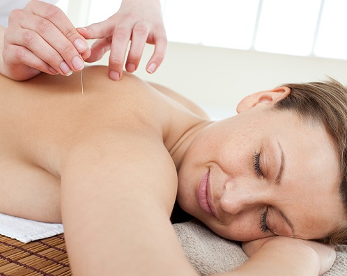 Acupuncture needles on a beautiful woman's back in a Spa center